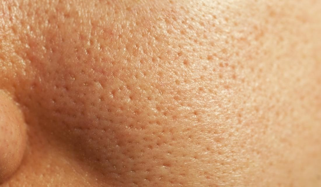 Tired of Large Pores? Here's How to Make them Smaller